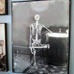 Picture from 1900, a skeleton just kickin' it.